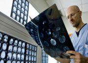 Έγινε η πρώτη μεταμόσχευση ανθρώπινου κεφαλιού