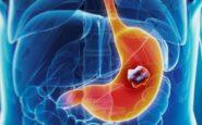 Καρκίνος του στομάχου: Προσοχή στα «αθώα» συμπτώματα