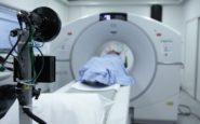 Έρευνα: Η ακτινοβολία από τις αξονικές τομογραφίες συνδέεται με αυξημένο κίνδυνο καρκίνου